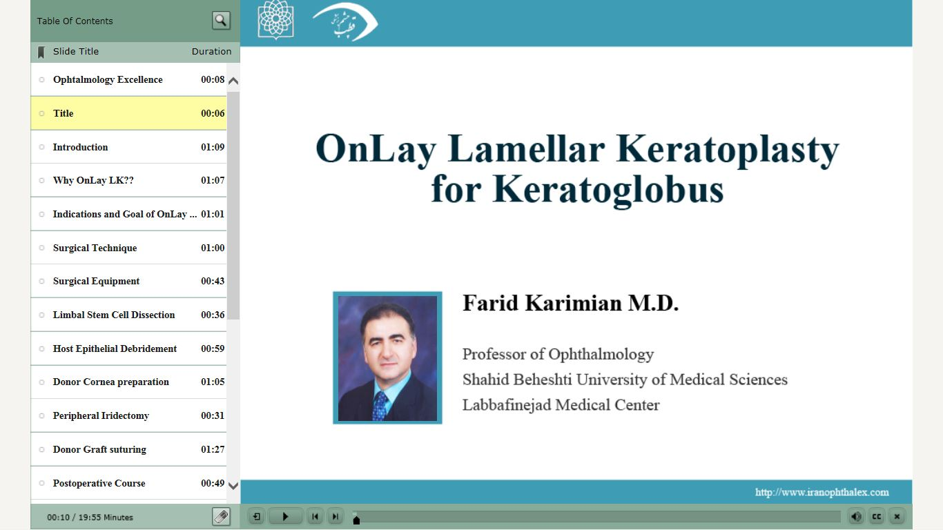 OnLay Lamellar Keratoplasty for Keratoglobus